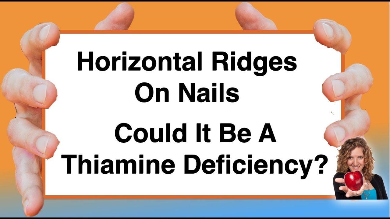 Magnificent Nail Health Horizontal Ridges Ideas - Nail Art Ideas ...