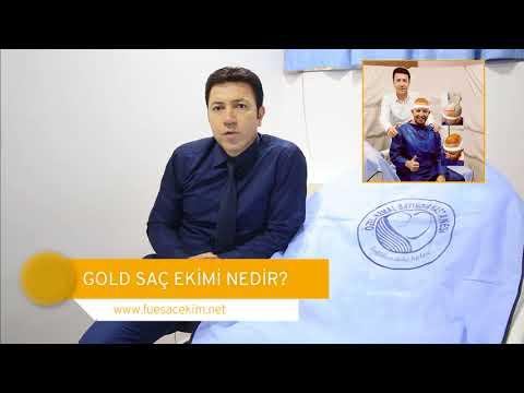http://www.fuesacekim.net/video/gold-sac-ekimi-nedir-fue-ile-arasindaki-farklar-nelerdir