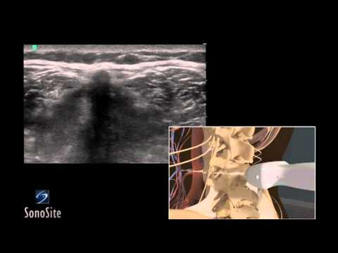 3D How To: Ultrasound Guided Lumbar Puncture Procedure - SonoSite Ultrasound