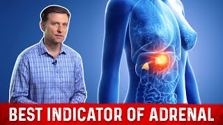 The Best Indicator of Adrenal Fatigue is...