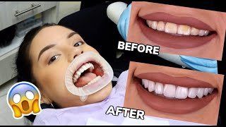 ALL YOU NEED TO KNOW ABOUT VENEERS / MY EXPERIENCE