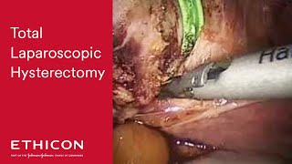 Total Laparoscopic Hysterectomy featuring HARMONIC ACE®+7 Shears by Dr. Kondrup