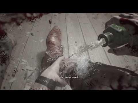 Resident Evil 7 Biohazard Reattaching My Leg Youtube