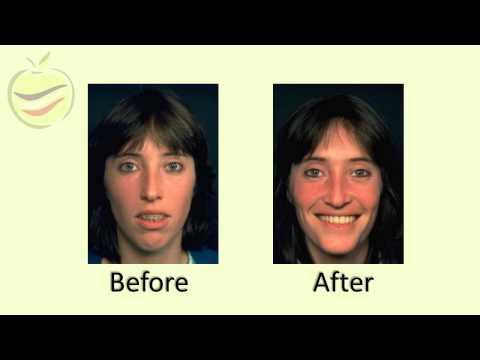 Dental Cases Presentation