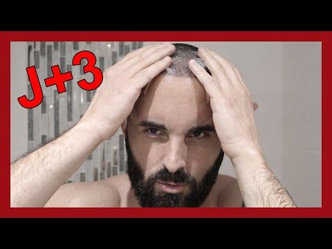 J+3 : Premier shampoing des greffons !   MA 2ÈME GREFFE DE CHEVEUX