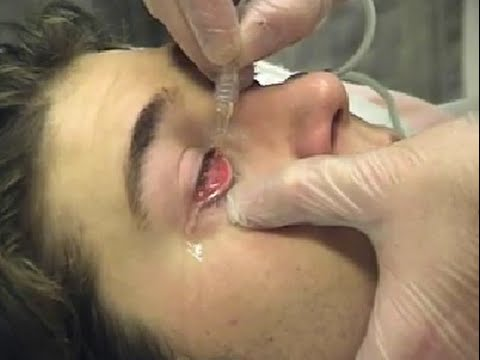 Irrigation of the Eye