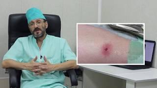 Лечение фурункула