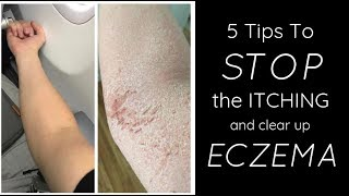 HEALING ECZEMA - 5 Things I Do Each Day To STOP THE ITCH