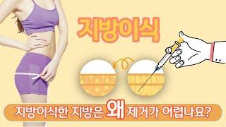 (부산성형외과)지방이식