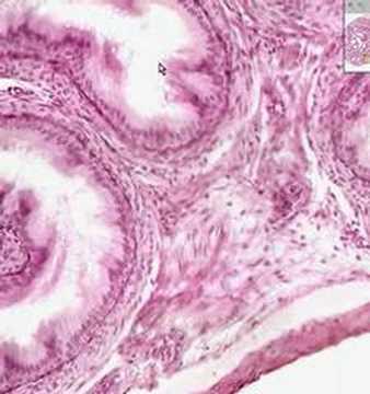 Shotgun Histology Epididymis