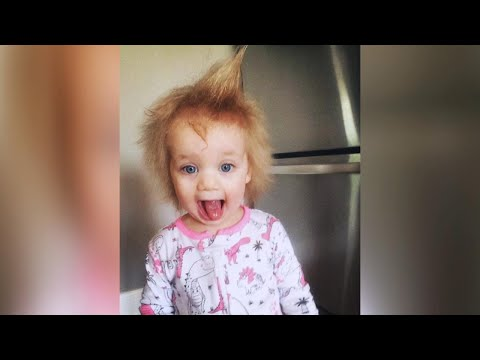 Child's Uncombable Hair Syndrome Explained!Kaynak: YouTube · Süre: 4 dakika29 saniye