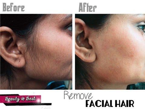 Stop facial hair growth naturally