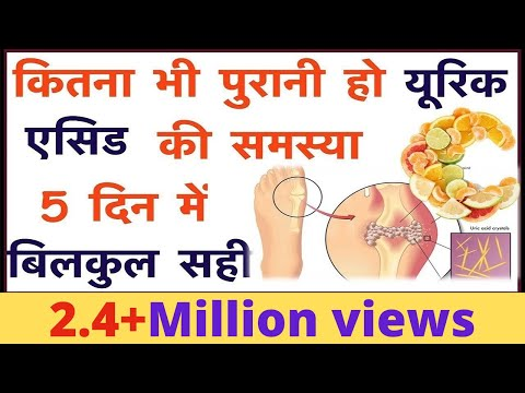 Herbal Gout Treatment | Diet To Control Uric Acid | Foods To Avoid