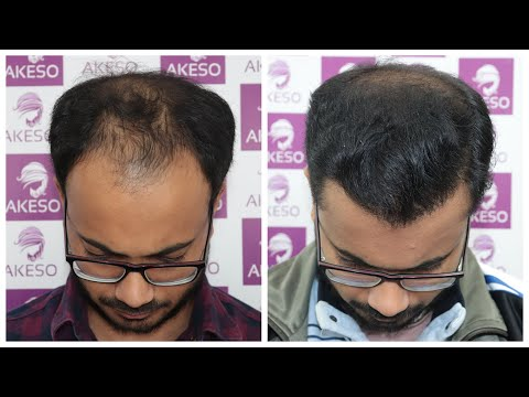 NW 6 - Front area hair transplant result - Best hair Transplant in India at AKESO
