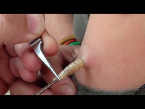 BOTFLY MAGGOT REMOVAL | Mango Worms In A GIRL