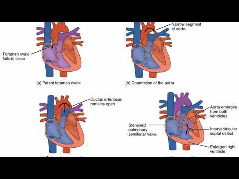 Difference Between Cyanotic and Acyanotic Congenital Heart Defects