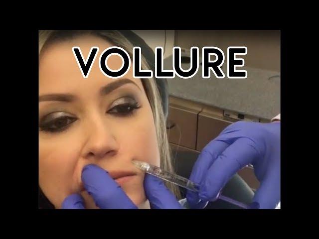 Vollure