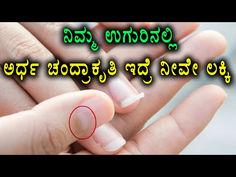 Half Moon Shape On Your Nails | What does it indicates | Watch video | Oneindia Kannada