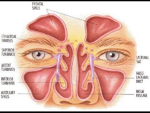 Chronic Sinus Problems are Correctable with Balloon