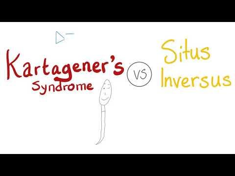 Kartagener's Syndrome VS Situs Inversus Totalis