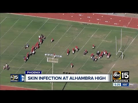 High school football game canceled due to skin infection