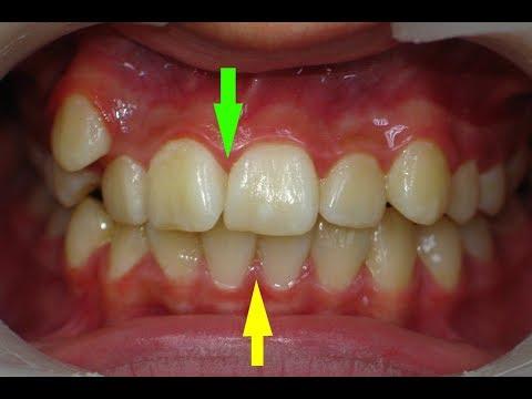 неровные зубы неправильный прикус - лечение брекетами
