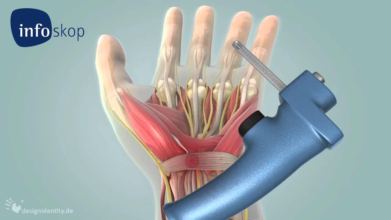 3d Medical Animation Arthroscopy Carpal Tunnel Syndrome Cts