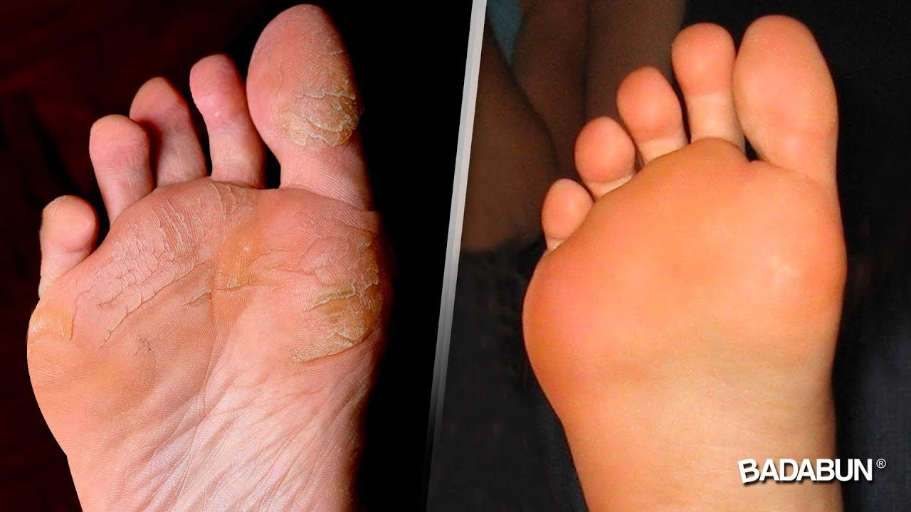 picazon y descamacion en los pies