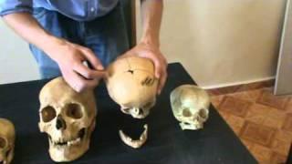 Достающее звено #7. Швы на черепе(Об особенностях зарастания черепных швов у человека и у шимпанзе. Подробней: http://antropogenez.ru/man-n-apes/ Все видео..., 2011-07-11T20:35:56.000Z)
