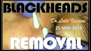 BLACKHEADS REMOVAL BY DR.LALIT KASANA (25 MAY 2019)