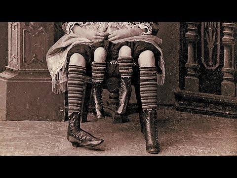 The Story Of Myrtle Corbin, The Real Four Legged Girl