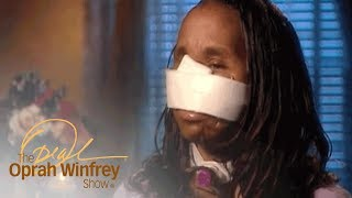 The Woman Who Was Shot in the Face By Her Boyfriend | The Oprah Winfrey Show | Oprah Winfrey Network