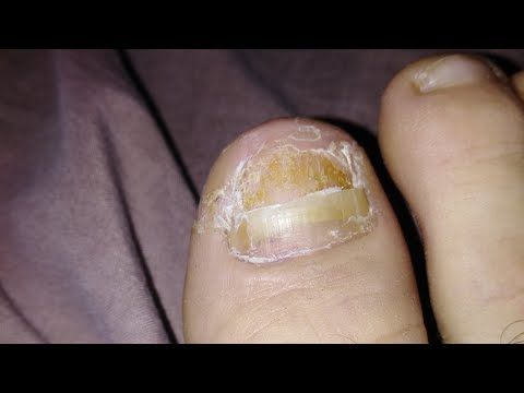how to fix a detached toenail