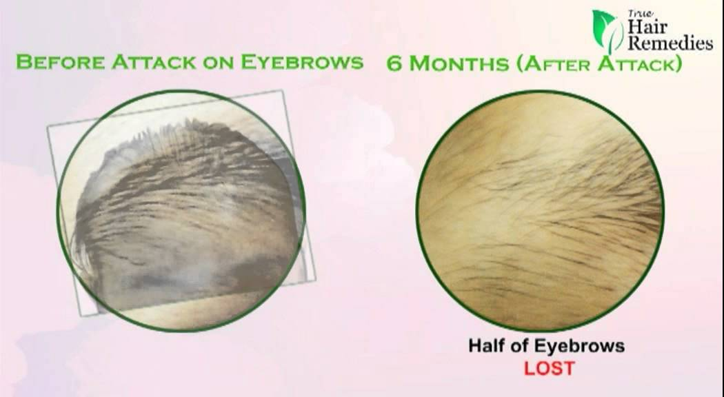 Hairstyles For Alopecia Areata : Eyebrow hair loss in patches u2013 your cool haircut photo blog