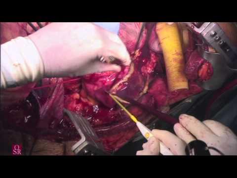 Open thoracoabdominal aortic aneurysm repair