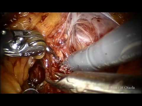 Robotic radical prostatectomy, Nerve preservation by lateral approach, full length.