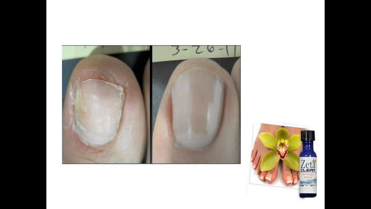 zeta clear nail fungus walmart - YouTube