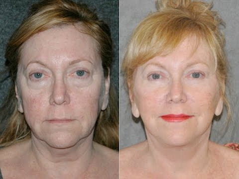 beverly hills instant facelift reviews