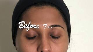 Microneedling with DermaFNS pen thumbnail