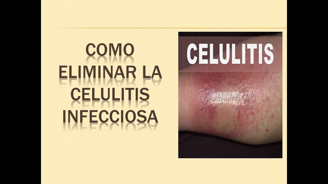 se puede hacer ejercicio con celulitis infecciosa
