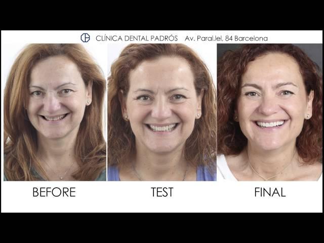 Testimonials aesthetic dentistry and porcelain veneers - Clinic Padrós