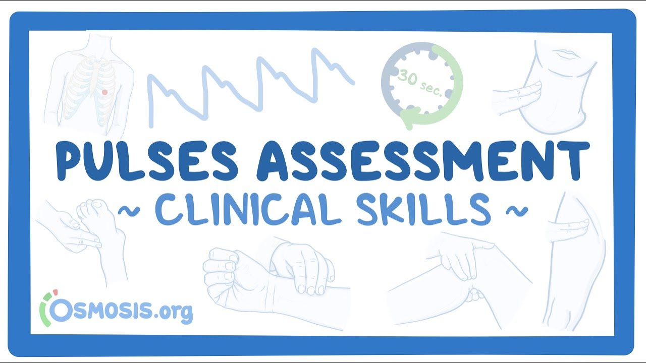 Download Clinical Skills: Pulses assessment