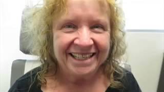 Patient Testimonial (Eyelid Surgery)