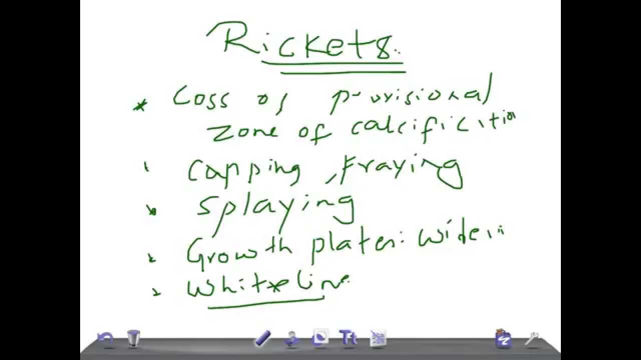 Signs of rickets