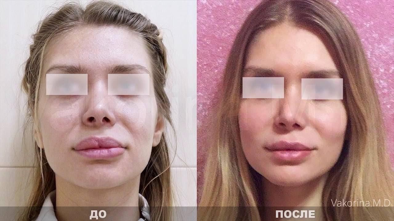 фото губы до и после