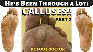 He's Been Through a Lot: The Calluses (Part 2)