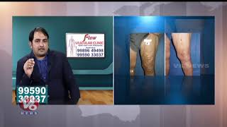 Reasons And Treatment For Varicose Veins   Flow Vascular Clinic    Good Health
