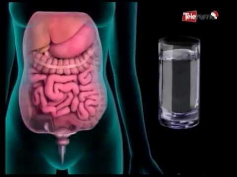 Cómo afecta el estrés a la gastritis