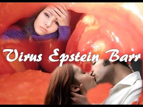 Virus Epstein Barr (Enfermedad del beso)