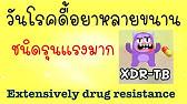ricta cu vene varicoase